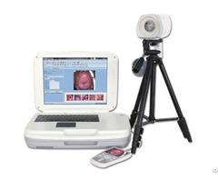 Ykd 3004 Portable Digital Colposcope