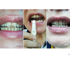 Lfsponge New Teeth Eraser Wholesale Tooth Whitening Products