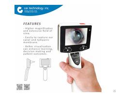 Ent Otolaryngology Digital Video Otoscope