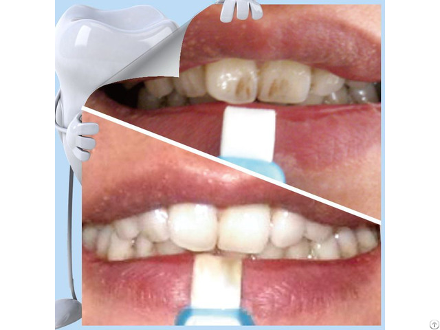 Top Sale Popular Home Use Teeth Whitening Strip