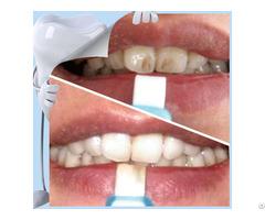 Top Sale Popular Home Use Teeth Whitening Strip