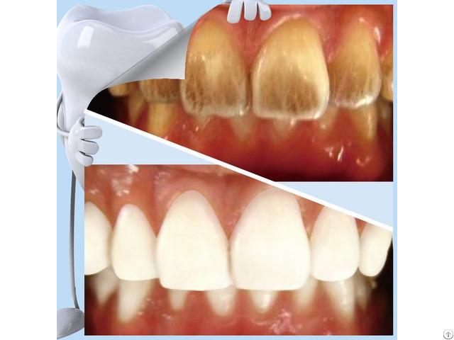 Factory Hot Sell Melamine Sponge Teeth Whitening Kits