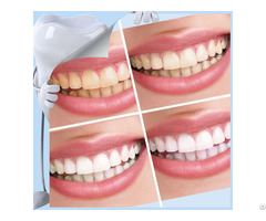 Patent Products Bright Smiles Teeth Whitening Kit