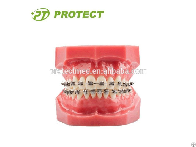 Orthodontic Training Typodont With Metal Brackets For Sale