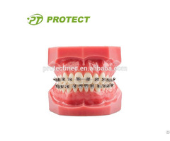 Dental Kit Orthodontic Self Ligating Bracket Different Torques With Ce Fda Iso