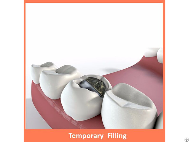 Temporary Filling