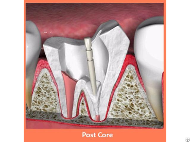 Dental Post Core