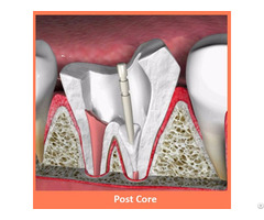 Dental Post Core