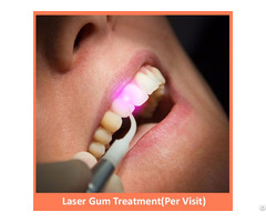 Laser Gum Treatment Per Visit