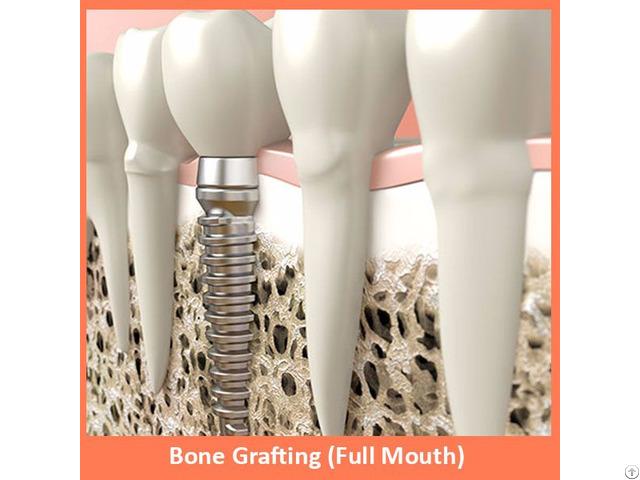 Bone Grafting Full Mouth
