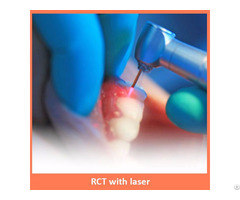 Root Canal Treatment With Laser