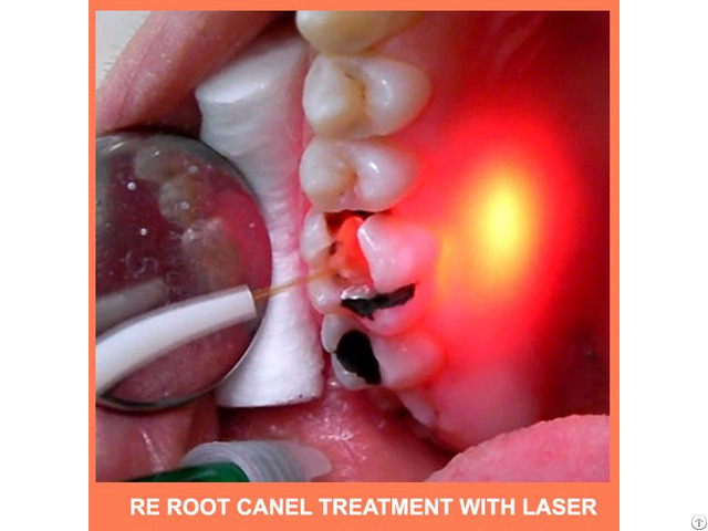 Re Root Canal Treatment With Laser