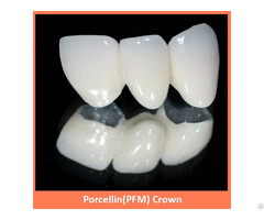 Porcellin Pfm Crown