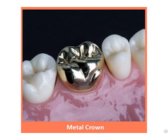 Dental Metal Crown