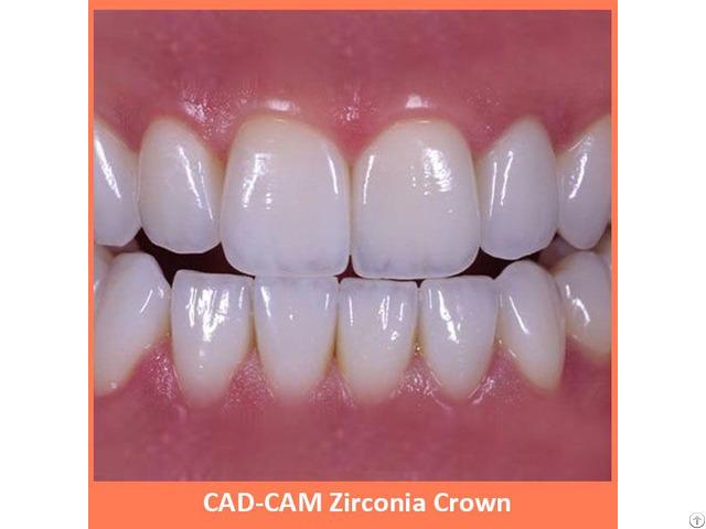 Cad Cam Zirconia Crown