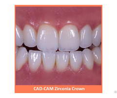 Cad Cam Zirconia Crown