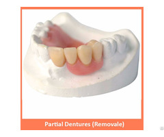 Partial Dentures Removale