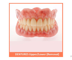 Dentures Upper Lower Removal