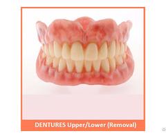 Dentures Upper Lower Removal