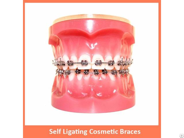 Self Ligating Cosmetic Braces