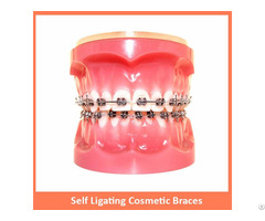 Self Ligating Cosmetic Braces