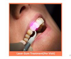 Laser Gum Treatment Per Visit